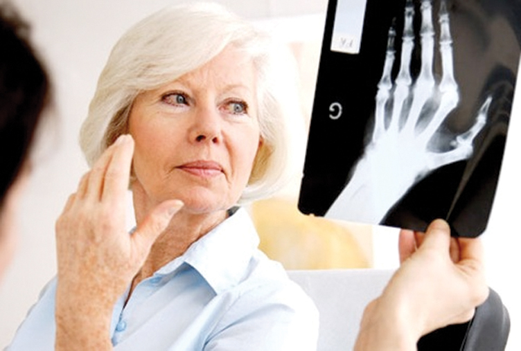 Arthritis-I know I have it, but what type