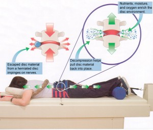 VAX-D Alleviates Common Aches and Pains