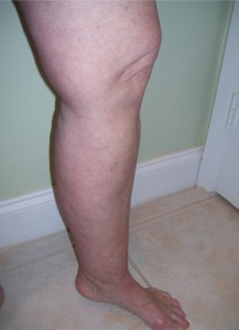 DEBUNKING THE MYTH OF CANKLES