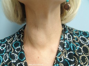 What to Know about Thyroid Nodules