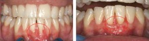 Gum Lift Surgery for Gingival Recession Treatment
