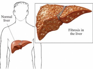 fatty liver | southwest florida's health and wellness magazine, Human body