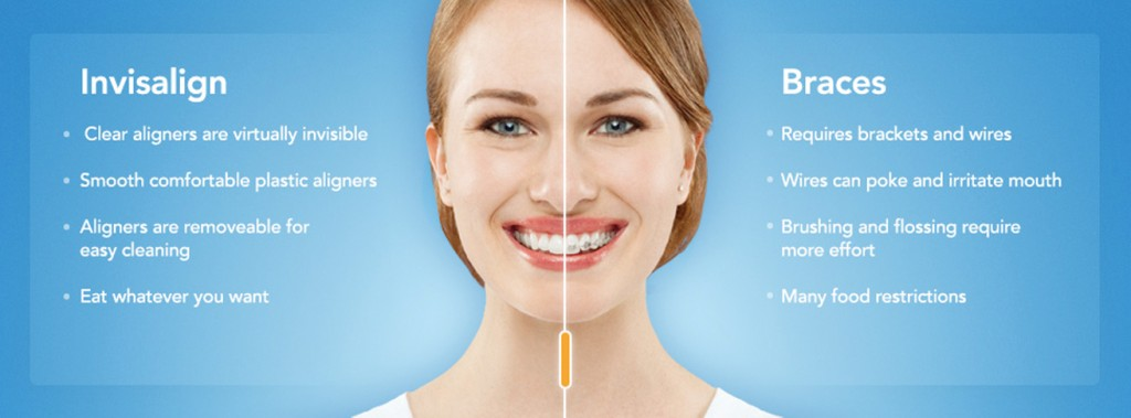 Benefits of Invisalign and Straight Teeth