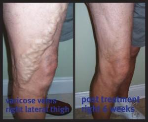 Swollen, achy legs