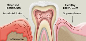Gum Disease Linked to Autoimmune Disorders