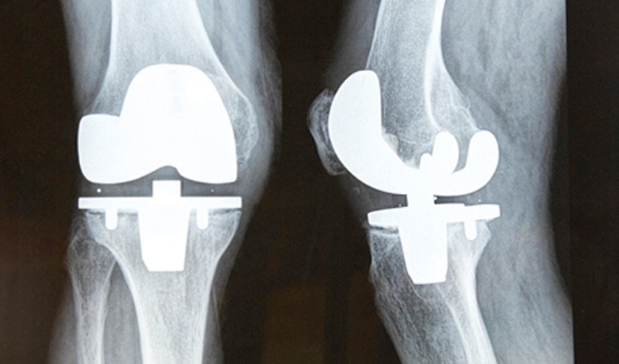 Knee Pain Does Not Mean You Need Knee Replacement Surgery