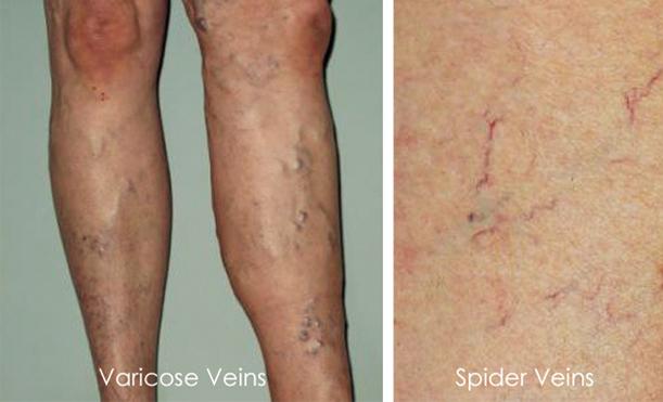 Varicose and Spider Veins