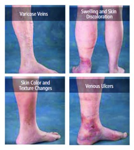 VARICOSE VEIN THERAPY