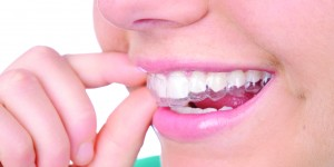 Best Smile with Invisalign