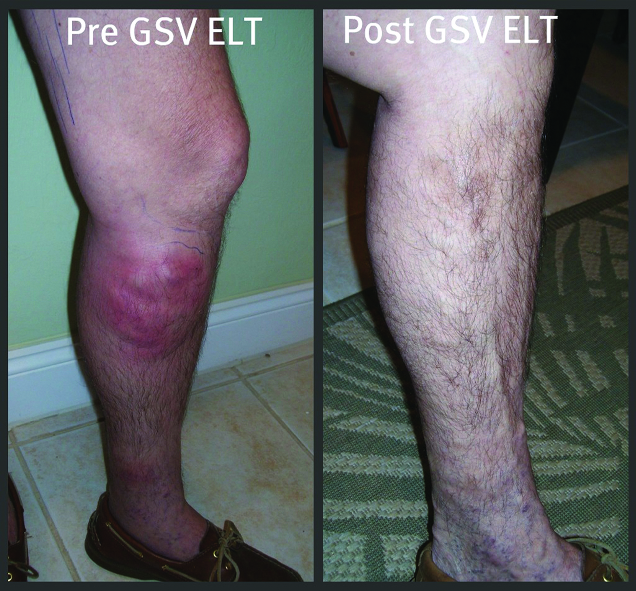 MORE THAN JUST VARICOSE VEINS