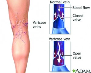 iodine varicose veins