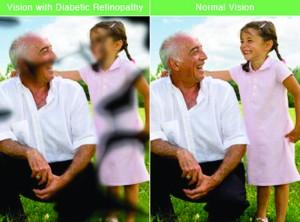 Eyes Diabetic Retinopathy
