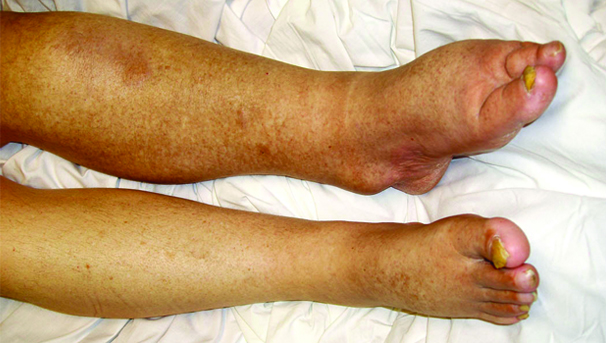 Chronic Limb Swelling