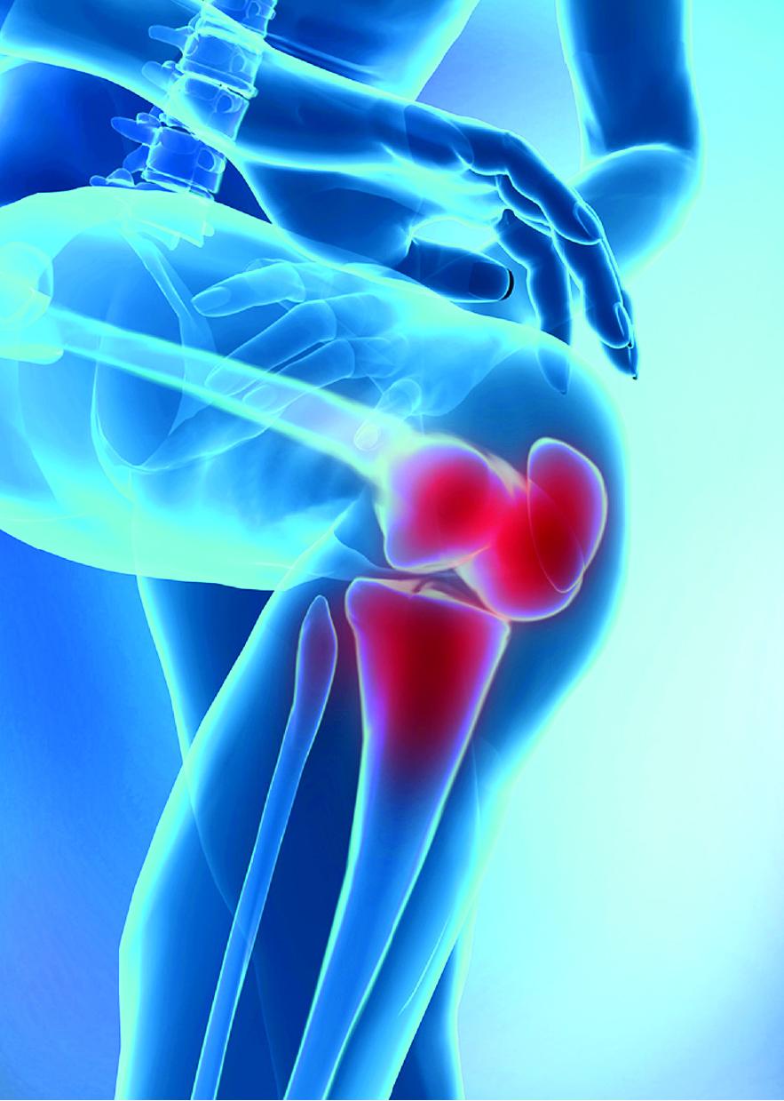 Osteoarthritis Pain Relief