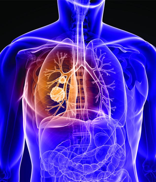 ULTRAFAST CT LUNG SCREENING
