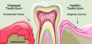Gum Disease Linked to Autoimmune Disorders