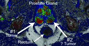 MRI Available to Detect Prostate Cancer