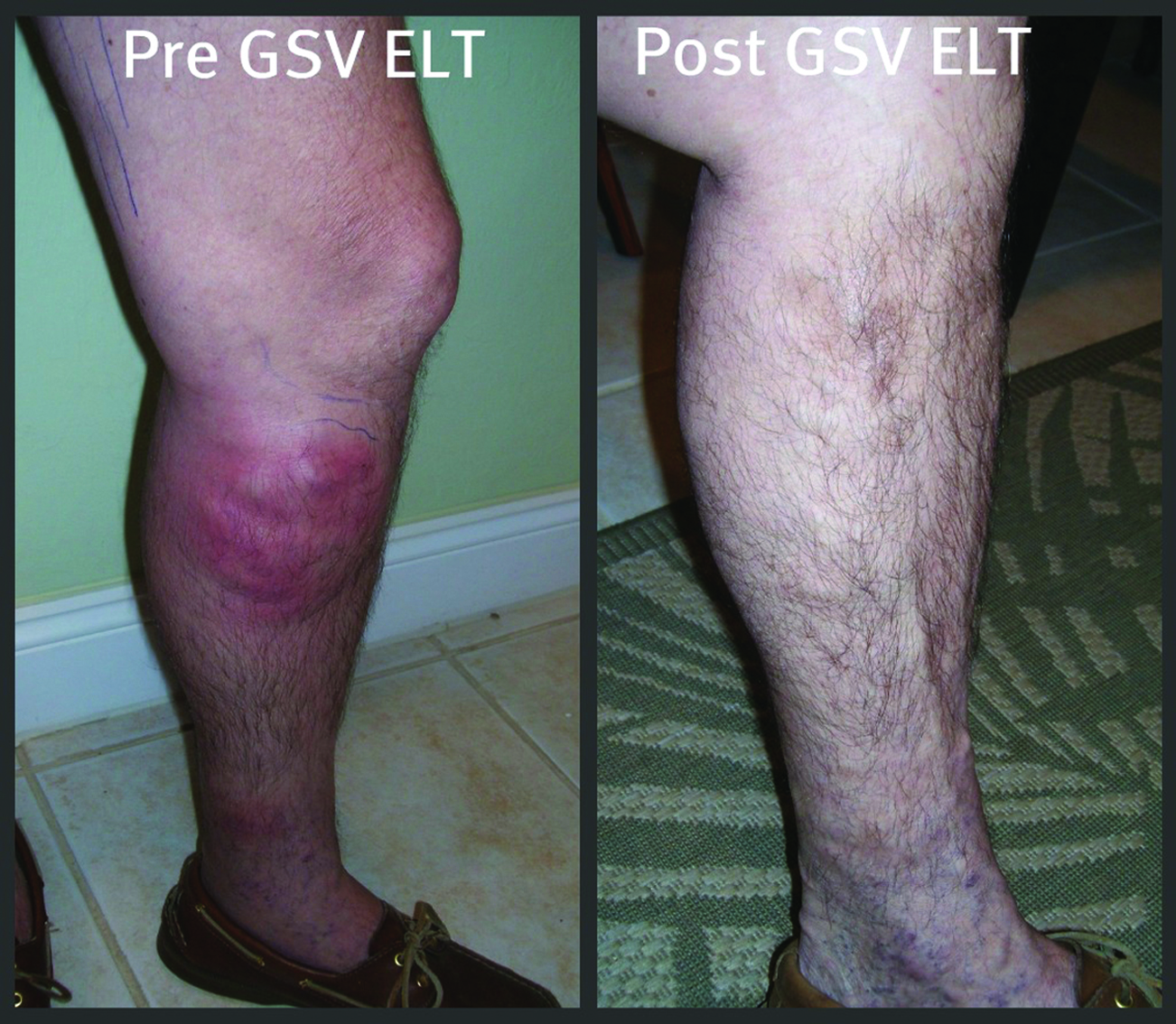 Top 7 Reasons to Get Your Leg Vein Evaluation