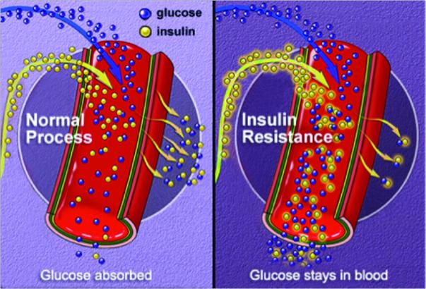 Cardiovascular Health and Diabetes Education