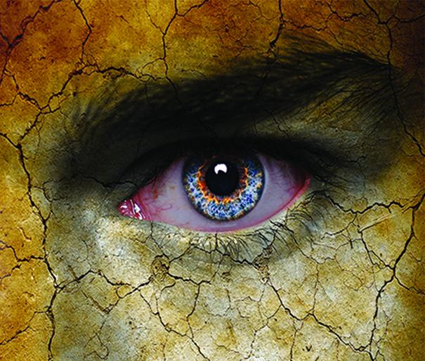 Frantz EyeCare