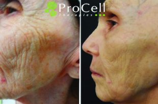 Cutting Edge Technology and Science Meet to Make You Look Years Younger!