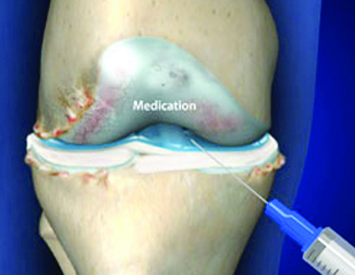 Prevent Surgery with Knee Injections