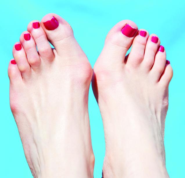 Косточки на ногах: как избавиться? Новый метод 67