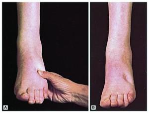 Limb Swelling