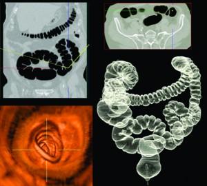 Virtual Colonoscopy Southwest Florida S Health And