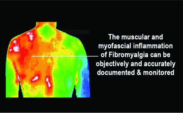 Autoimmune Diseases Are Frustrating to Diagnose