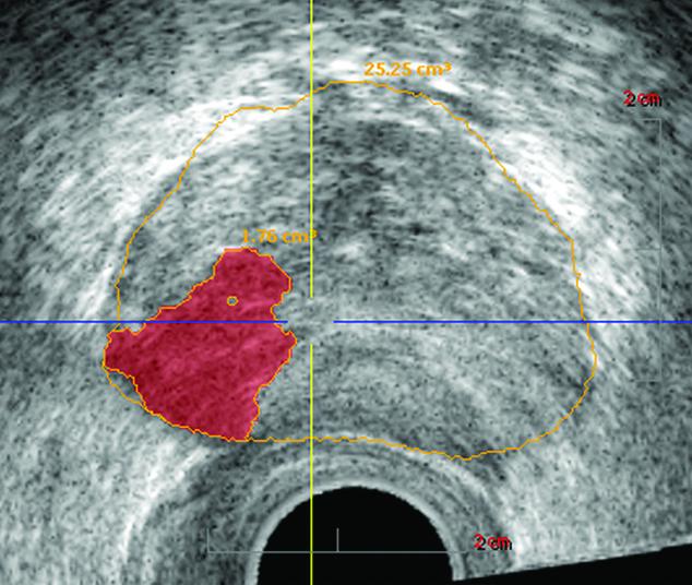 MRI-Guided Biopsies Detect Prostate Cancer