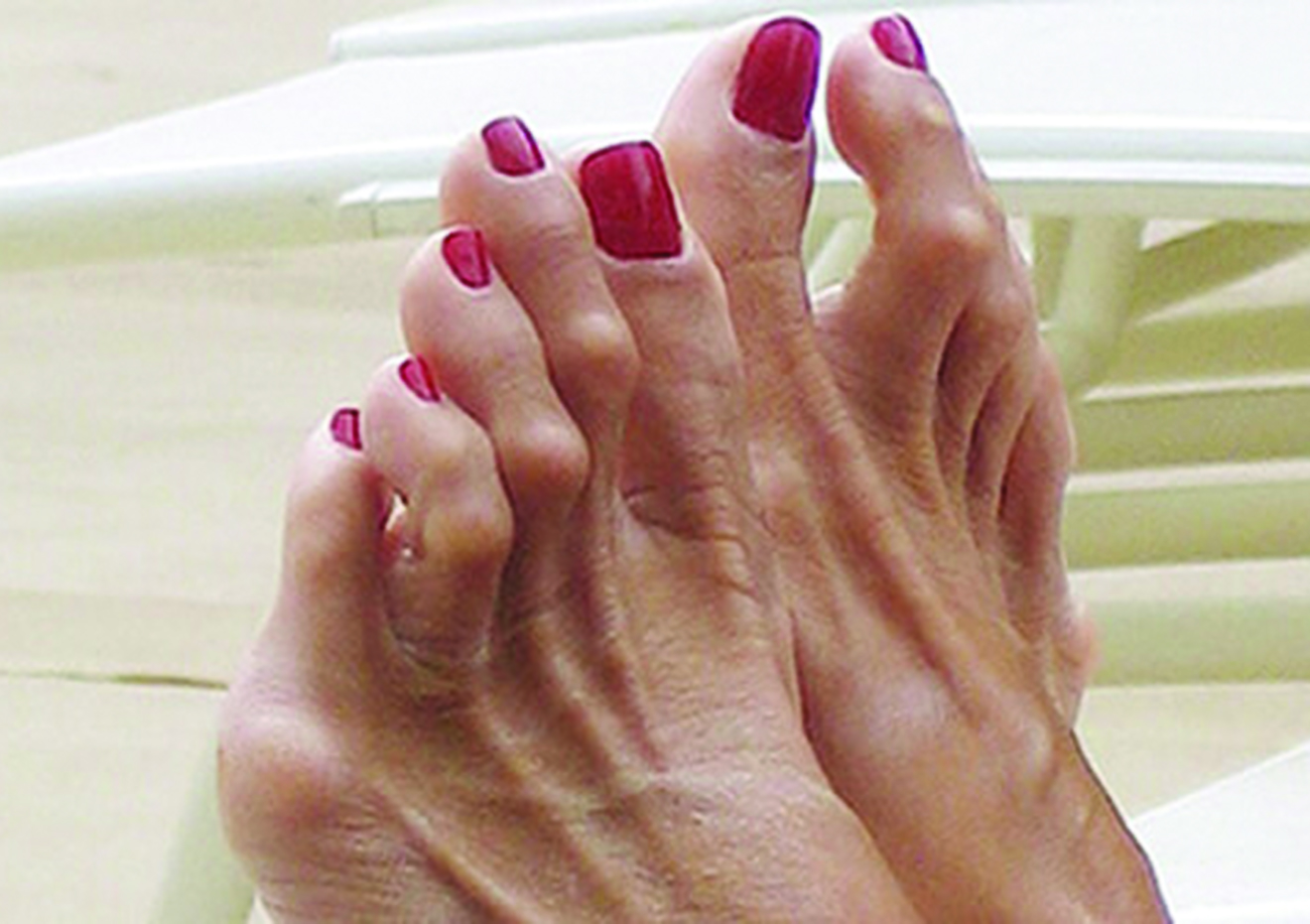 Что делать если пальцы на ногах находят друг на друга