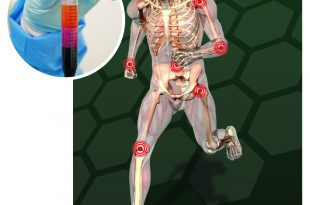 Stem Cells-setting the New Standard for Treatment of Orthopedic Conditions