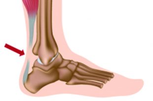 Achilles Tendon Ruptures and Getting You Back in the Game