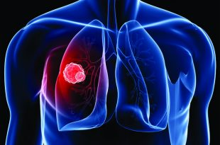 Lung Cancer and the Importance of Early Detection