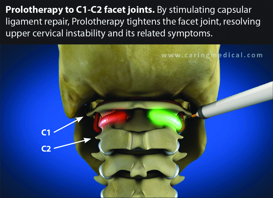 Car Collision Repair >> Cervical Instability: A Consideration in Dysautonomia & Joint Hypermobility Syndromes ...