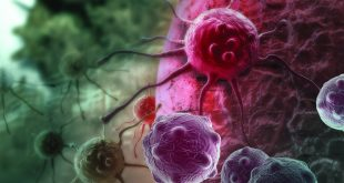 Prostate Cancer Biomarkers New Tests to Help Guide Clinical Decisions