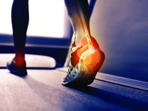 Healing Your Heel Pain