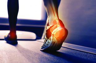 Healing Your Heel Pain