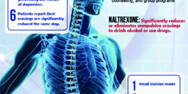 Naltrexone Implant For Alcohol And Opioid Addiction