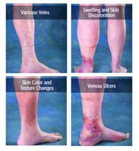 NEW HORIZONS IN VARICOSE VEIN THERAPY
