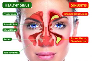 Say Goodbye to Your SINUS PAIN