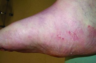 Charcot Foot Deformity Why Diabetics Should Be Concerned