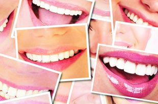 Premier Smiles Whitening and Brightening