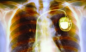 How Pacemakers Are Saving Women's LivesHow Pacemakers Are Saving Women's Lives