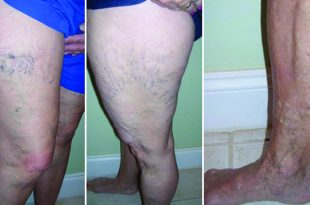 Examples of legs with spider veins.