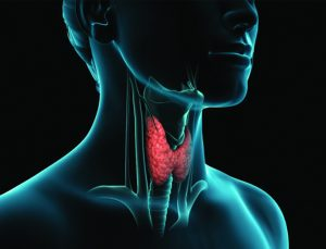THYROID CANCER INCIDENT RATES ON THE RISE