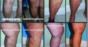 Top 6 Reasons to Get Your Leg Vein Evaluation and Treatment this FALL.