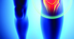 Why Your Knee Replacement Surgery Should Be Customized