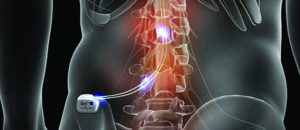 A Results-Driven Alternative  for Your Chronic Pain